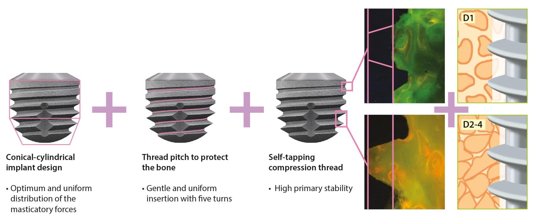 copaSKY Implant Design