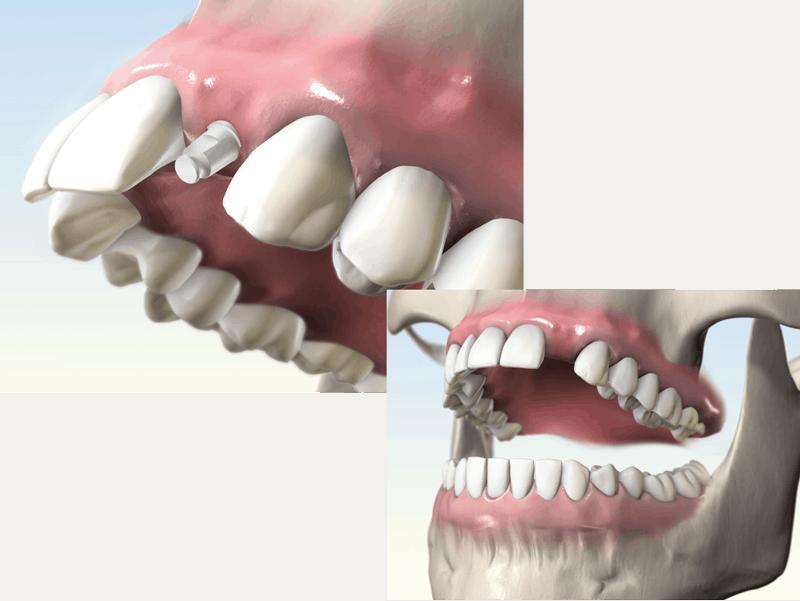 whiteSKY Indication One Piece Implant
