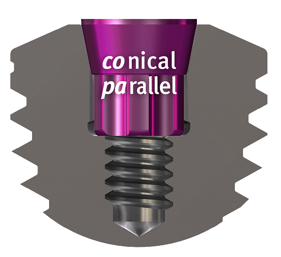 copaSKY Connical Parallel Connection Implant