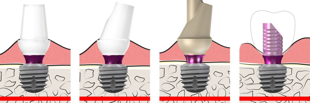 copaSKY BioHPP Elegance Abutments All