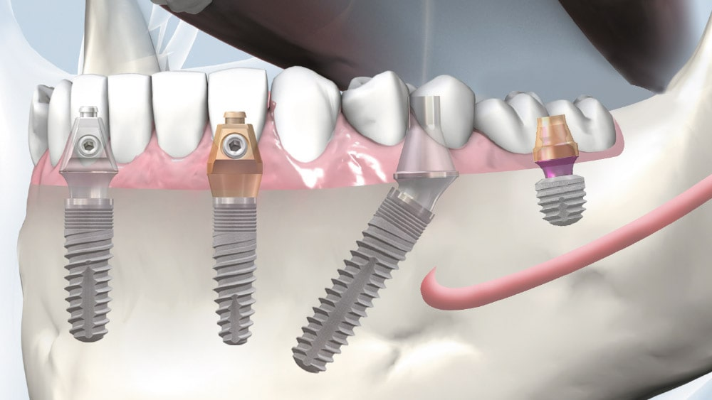 copaSKY - Screw Retained Restorations