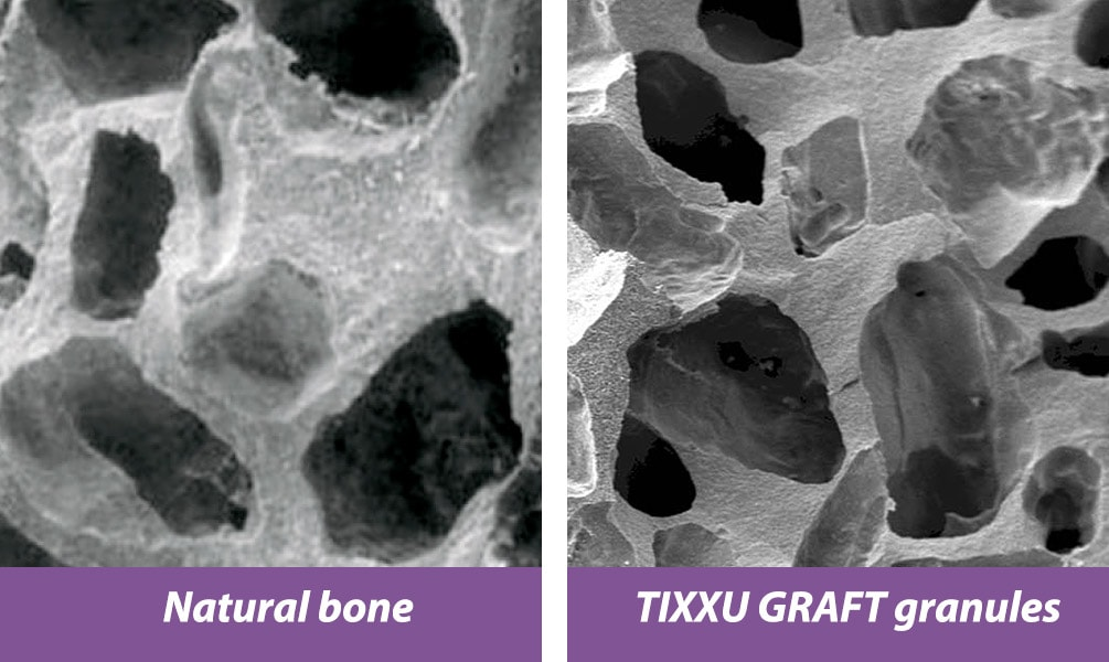Natural Bone Vs TIXXU GRAFT