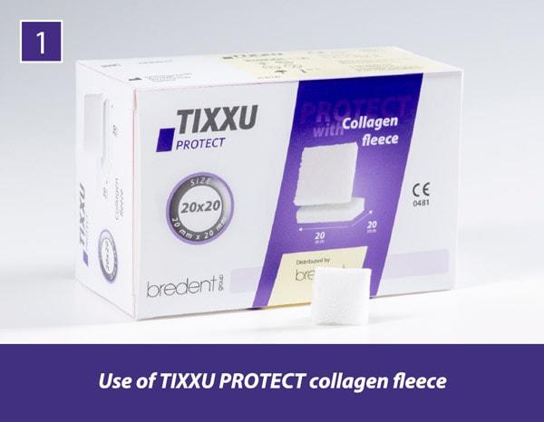 TIXXU_Protect_clinical_Case_1