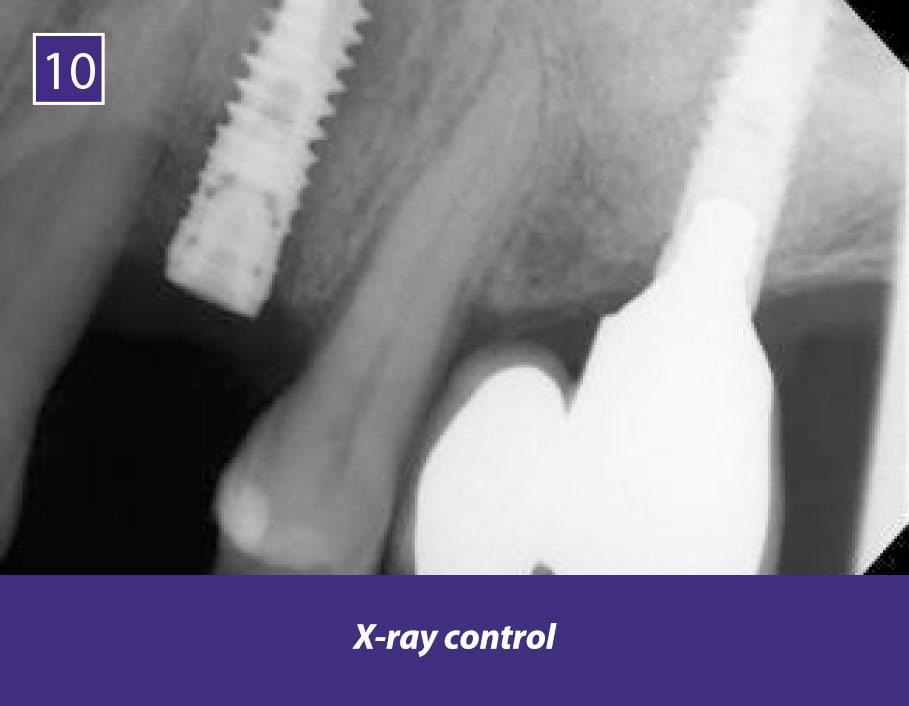 TIXXU_Protect_clinical_case_10