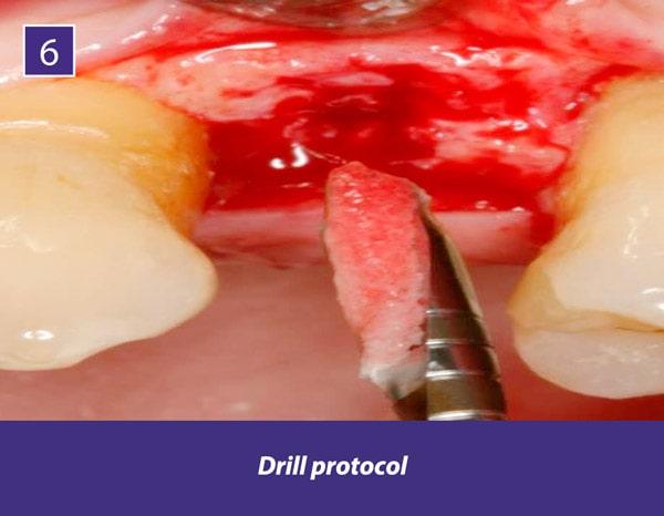 TIXXU_Protect_clinical_case_6